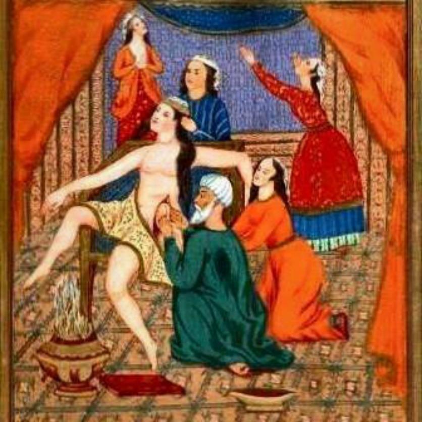 Antik İranda sezaryen doğumu resmi..